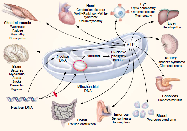 Image:Mitodisorders.png