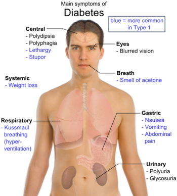 The Main Symptoms of Diabetes